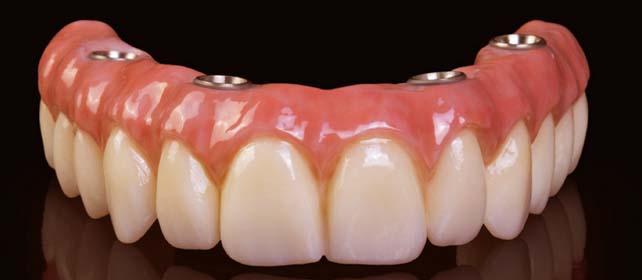 all-on-4-dental-implants-san-francisco.jpg